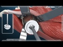 Anterior Approach Dual Mobility Acetabular Component 3D Animation
