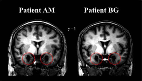 МРТ-снимки головного мозга сестёр Б. Г. и А. М. Красным помечены повреждённые участки