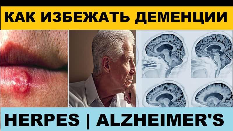 Герпес связали с болезнью Альцгеймера Alzheimers and Herpes