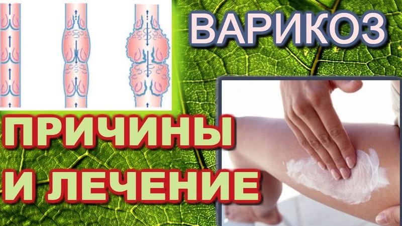 Лечение варикозного расширения вен и причины его появления Дуйко АА встреча 2018 год май