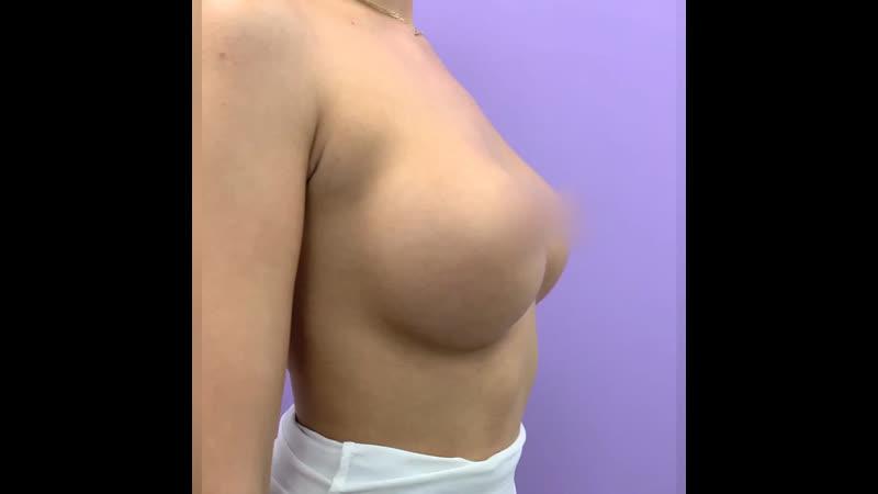 Увеличение груди Акция во Frau Klinik