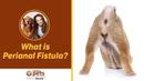 Что такое перианальная фистула What is Perianal Fistula