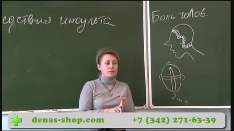 62 Лечение головной боли ДЭНС-терапией - YouTube