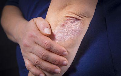 Иммунодепрессанты могут быть назначены для лечения пациентов с болезнью Крона, которая характеризуется воспалением кишечной стенки.