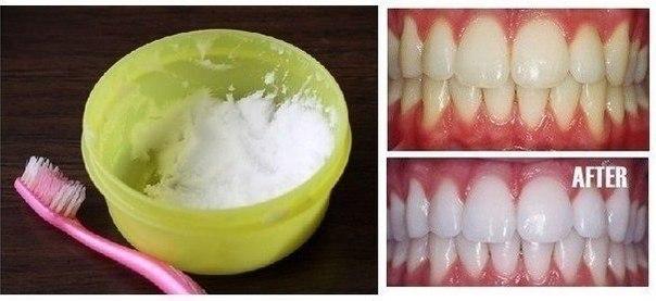 ОТБЕЛИВАЕМ ЗУБЫ Очень простой и эффективный домашний способ! Выдавите немного зубной пасты в небольшую емкость, затем добавьте ... Читать далее - »>