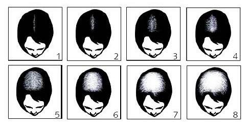 Выпадение волос после приема горионов