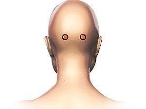 Как за пять минут избавиться от головокружения Две эти симметричные точки расположены на затылке ТОЧКА № 1 Две эти симметричные точки расположены на затылке. Нужно провести через затылок воображаемую линию от верхнего края одного уха до верхнего края другого. Затем приложить к голове ладонь правой руки так, чтобы мизинец касался уха. Тогда точка будет находиться на пересечении края указательного пальца и воображаемой линии. Аналогичным образом отыскивается и точка с левой стороны затылка.…