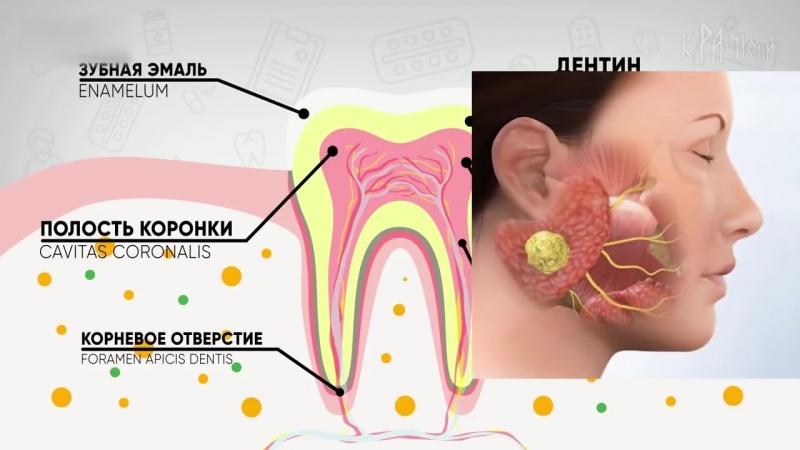 Факты о кариесе. Естественное лечение зубов