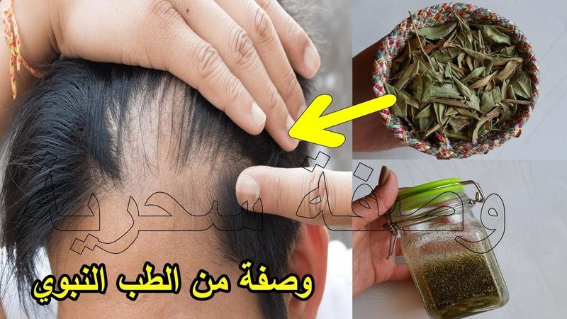 مدكور في القرآن لعلاج تساقط الشعر تُنبِت و1