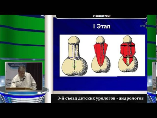 Колмаков О Ю - Двухэтапная техника оперативного лечения мошоночной формы гипоспадии у детей