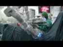 Nguyễn Thanh Liêm và các cộng sự trình diễn Kỹ thuật Nội soi robot