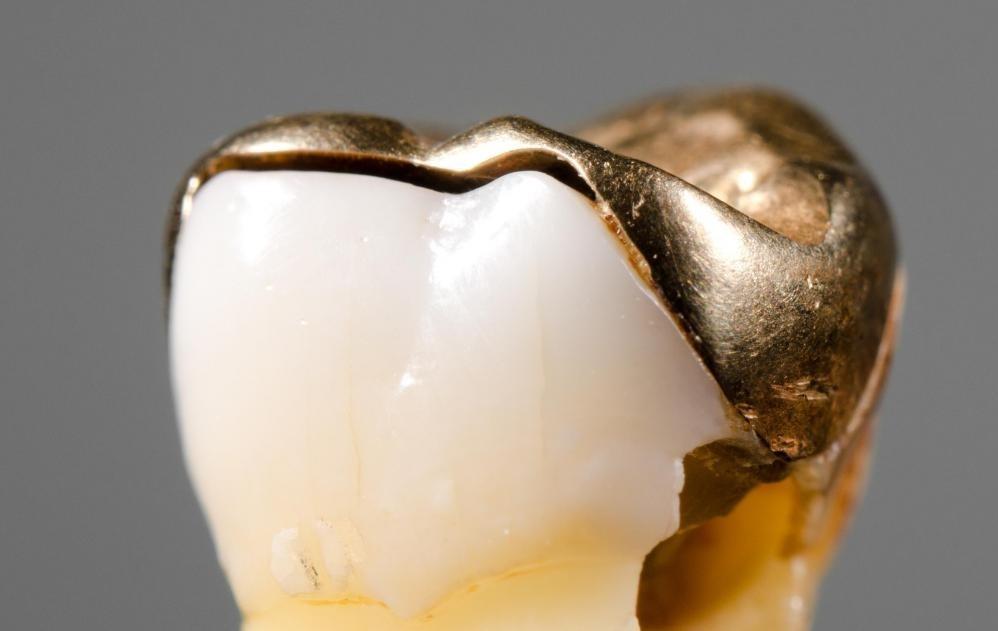 Оставшаяся часть зуба является одной из причин боли в зубах после наполнения.