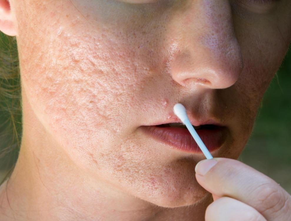 Местные мази рецепта обычно более эффективны при лечении акне, чем прополис или другие домашние процедуры.