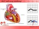 Urok 2 Videokurs EKG pod silu kazhdomu