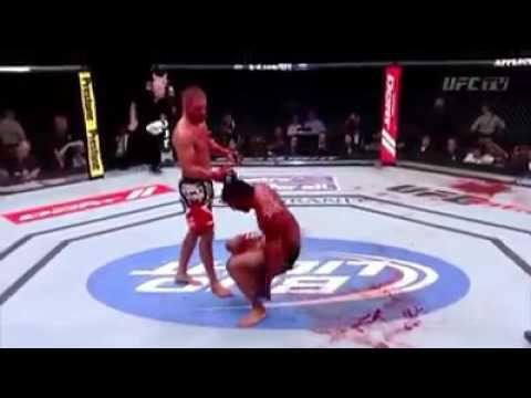 MMA Blood bath fights worst injuries in UFC
