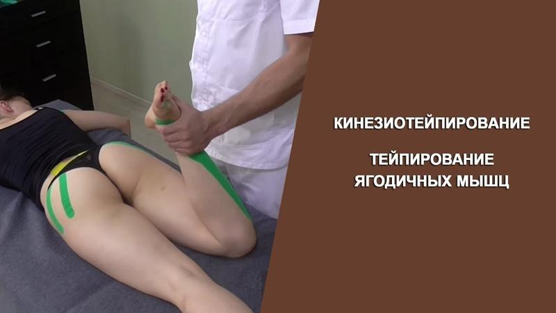 Кинезиотейпирование. Тейпирование ягодичных мышц. Циванюк А.В.