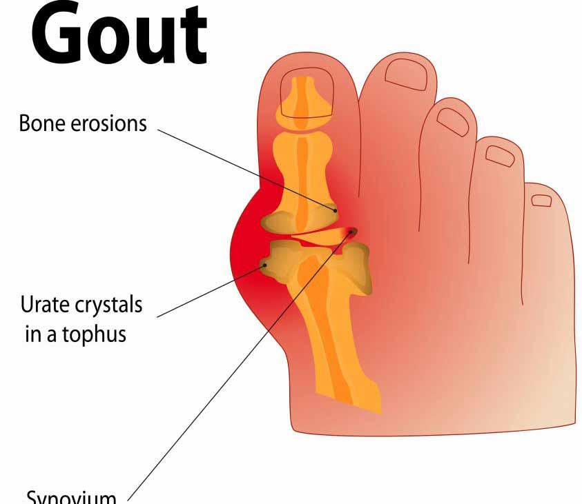 Основным симптомом подагры является повышенный уровень мочевой кислоты в крови.