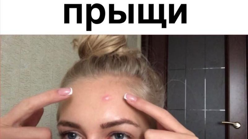 """𝓓𝓮𝓻𝔂𝓪𝓫𝓲𝓷𝓪 𝓚𝓻𝓲𝓼𝓽𝓲𝓷𝓪 on Instagram """"Девочки никогда не выдавливайте прыщи 😂💋 • дерябина вайны приколюха топ давитьпрыщи прыщи"""""""