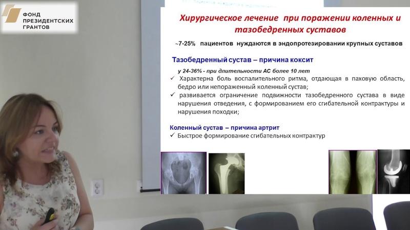 Лапшина С.А. - Эндопротезирование у пациентов с болезнью Бехтерева, подготовка и реабилитация