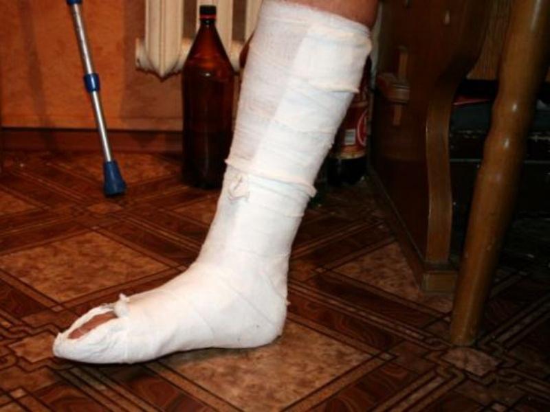 Мэр  Северодонецка госпитализирован в больницу с ушибом головы и переломом ноги