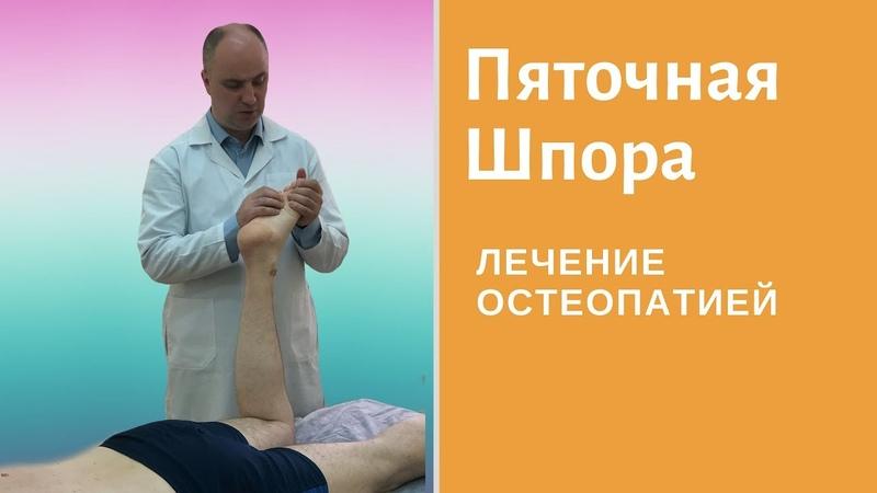 Что такое пяточная шпора или плантарный фасциит? Остеопатия при пяточной шпоре и боли в пятке