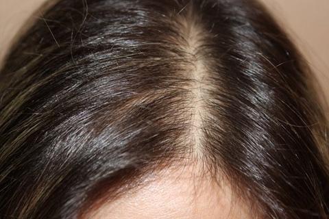 Рубцовая алопеция (выпадение волос) - это термин, используемый для группы расстройств.