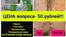 Убрать пигментные пятна постакне расширенные поры за 50 рублей Альтернатива лазерной шлифовке