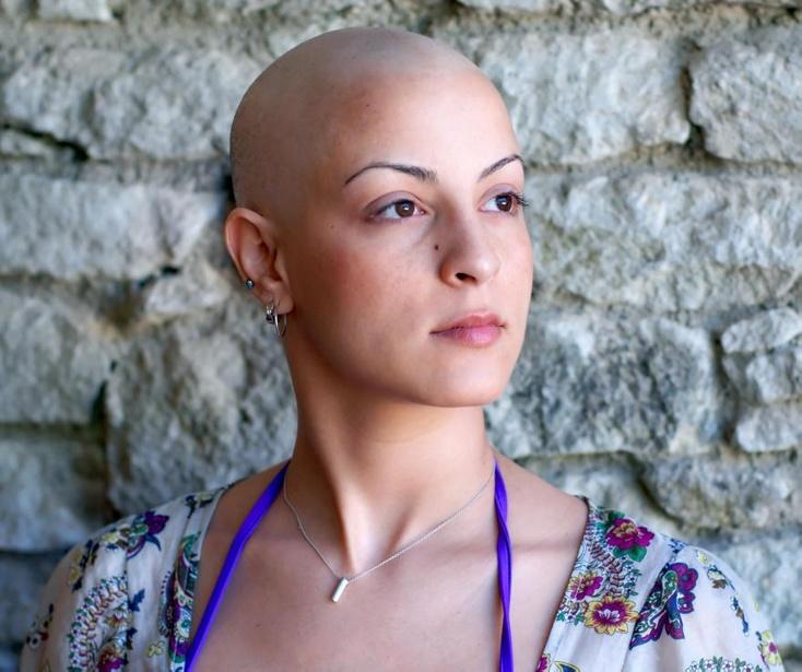 выпадение волос побочный эффект многих химиотерапевтических методов лечения рака