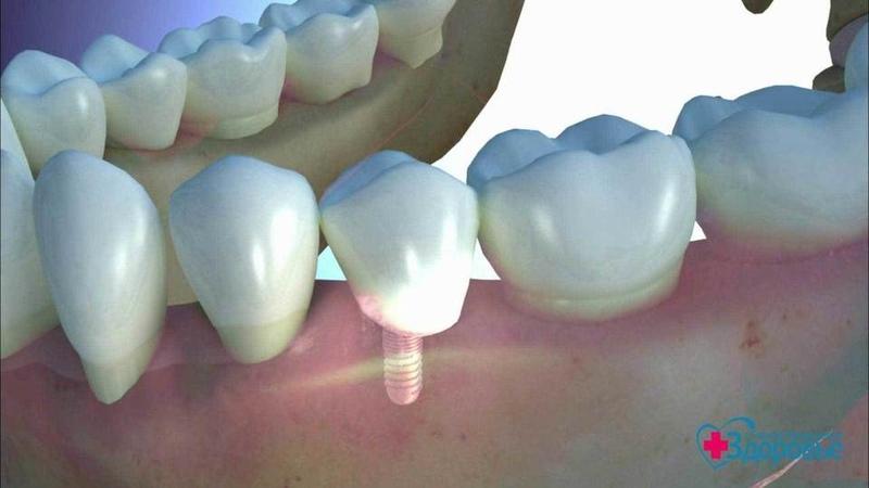 Зубные импланты— для всех. Здоровье. Фрагмент выпуска от09.12.2018