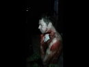 Brazil man chat passerby despite bleed heavy