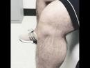 Хроническая нестабильность коленного сустава