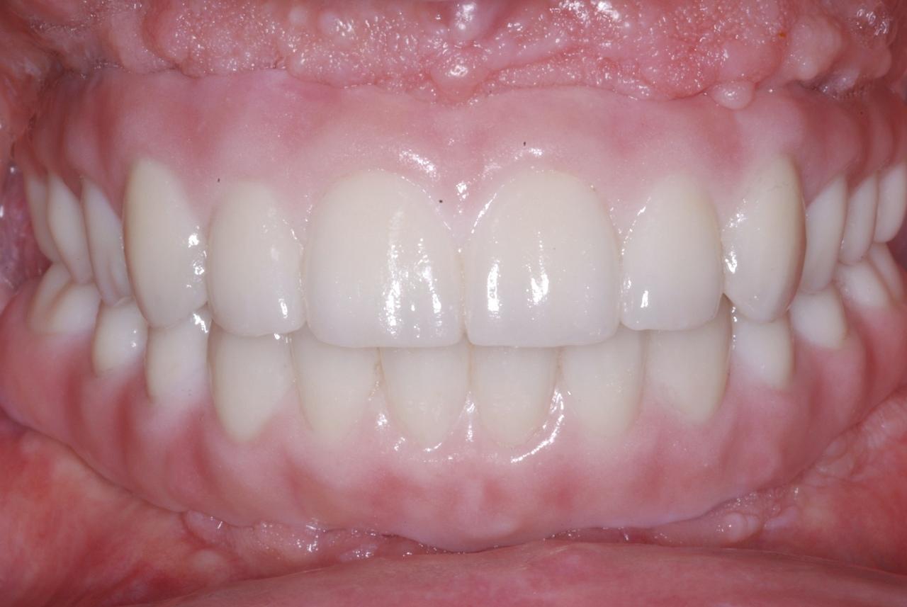 Протезирование при отсутствии большого количества зубов