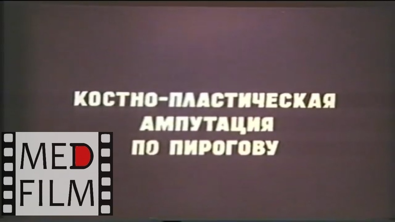 Ампутация по Пирогову © Pirogov's amputation