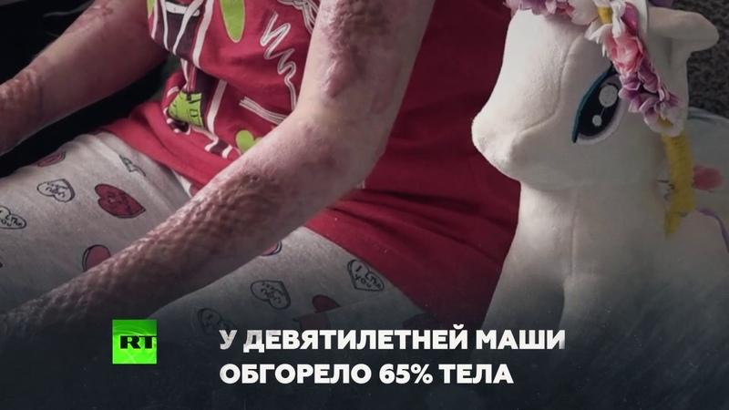 «Костюм как у Человека-паука»: как помочь Маше Степановой, пострадавшей в страшном пожаре