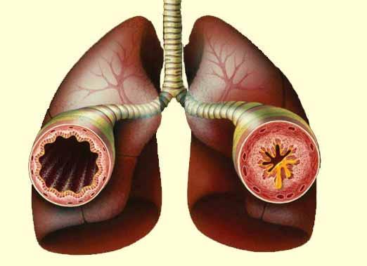 Реактивное заболевание дыхательных путей.