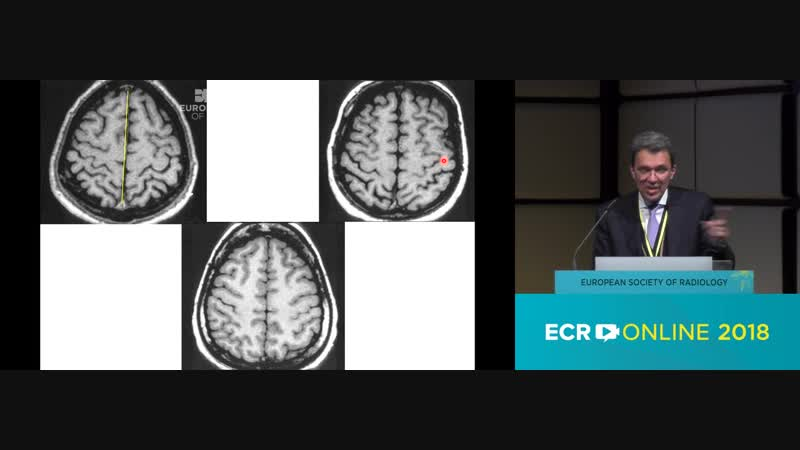 T. A. Yousry [LondonGB] - Cortical anatomy and primary functional areas