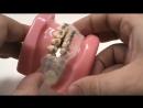 Placa de Bruxismo p Pacientes com Bráquetes Ортодонтия