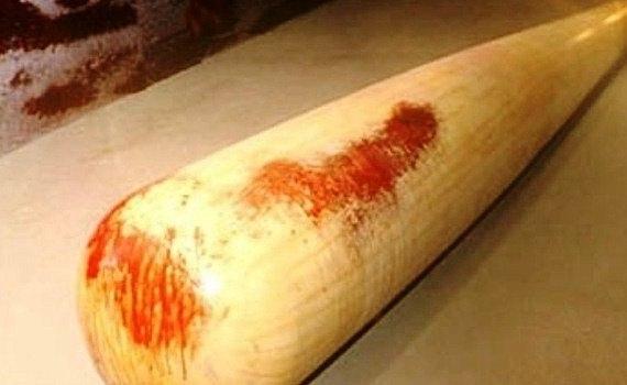 67-летний таганрожец избил битой жену, а после пырнул ее ножом в грудь