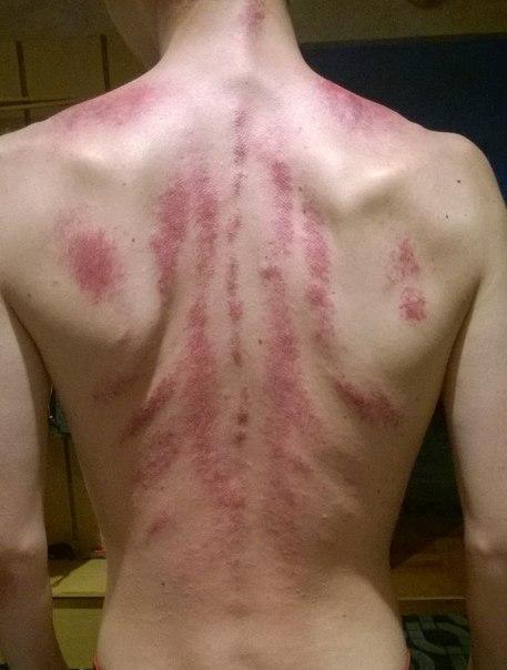 аллергия при холецистите фото