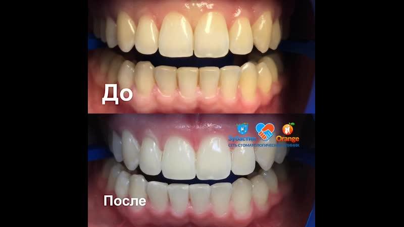 отбеливаниезубов врач-стоматолог, ортодонт Гончикова Туяна, медцентр Оранж-клиник, стоматология Зубастик.