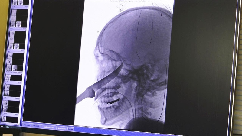 15-Year-Old Survives After Knife Gets Lodged in His Brain