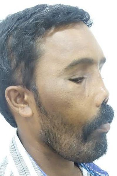 Хирурги перекроили внешность мужчины с синдромом львиного лица