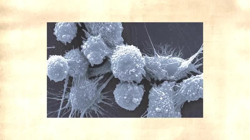 Рак излечим содой с 1969 года, но это скрывается намеренно. Подвиг доктора Симончини