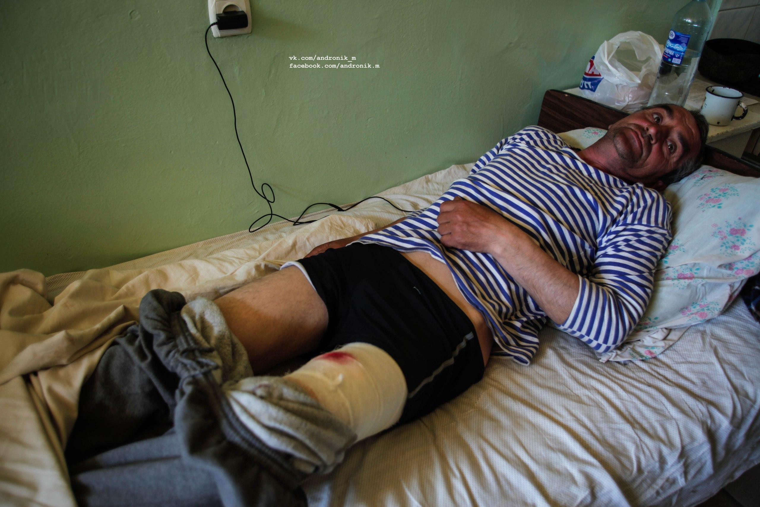 Боевики ВС украины прострелили бедро местному жителю в Донецке