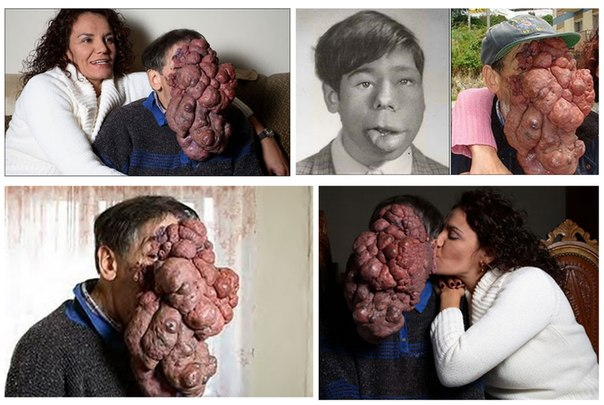 ужасные фото страшные фото