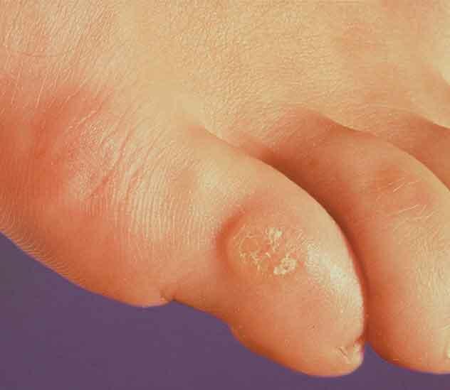 Если у вас диабет или другое состояние, которое вызывает плохое кровообращение в ногах, вы подвержены большему риску осложнений со стороны мозолей и натоптышей.