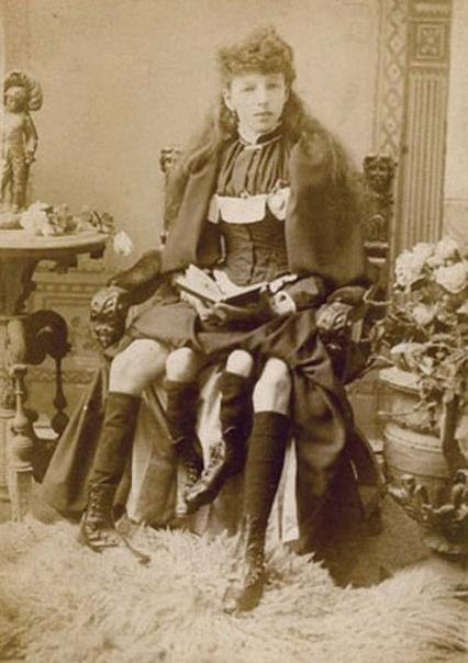 Девушка с удвоенным тазом и четырьмя ногами. Её звали Мертл Корбин и родилась она в 1868 году . Всю жизнь Мертл провела в цирке, но позже вышла замуж за врача, родила пятерых детей, которых она