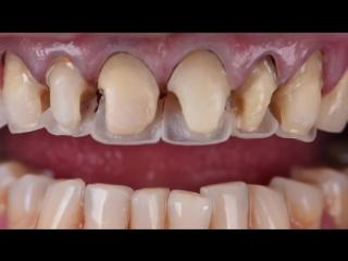Реставрация зубов композитная. Dr. Denis Krutikov. Стоматология.