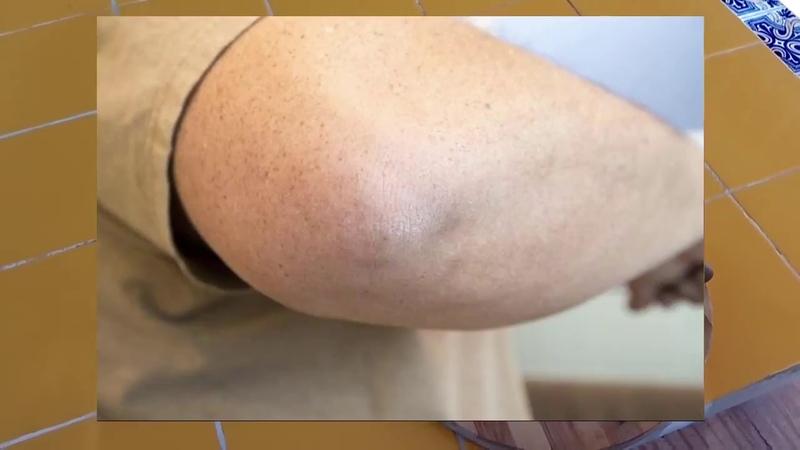 Шершавые локти и трещины на них. Dry elbows. Как избавится народными средствами. Из личного опыта.