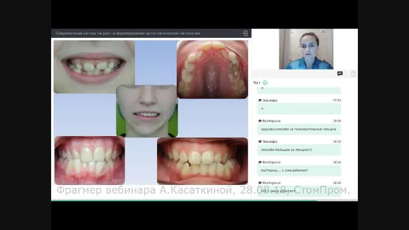 Зачем ортодонту знать паттерны черепа? Фрагмент вебинара А.Касаткиной, 28.08.18, СтомПром.